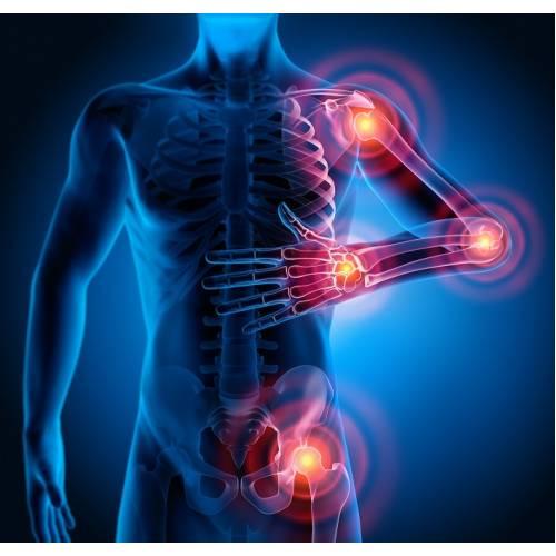 durere și umflarea articulațiilor cu alergii