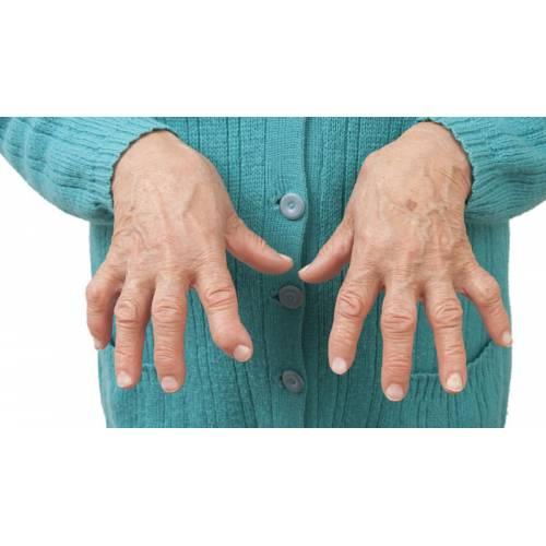 poliartroza ce este preparate pentru durere în articulațiile mâinilor