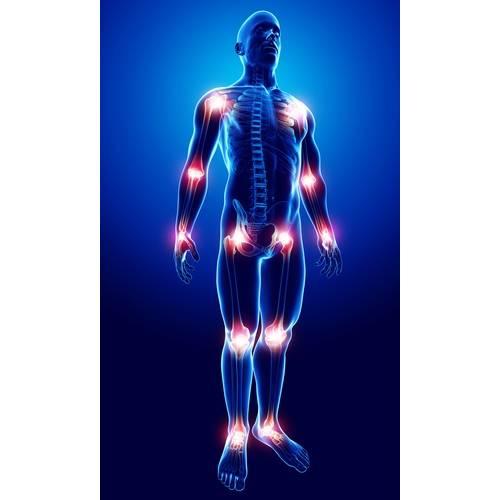 durere cumplită în articulații și oase meniscul perioadei de tratament a articulației genunchiului