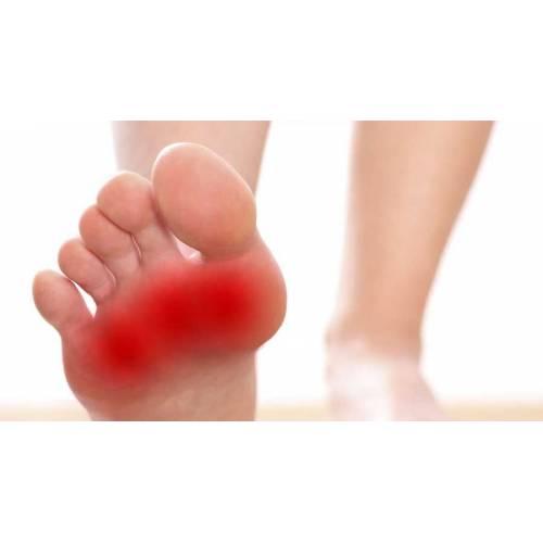 cauze ale edemului nepictural la picioare