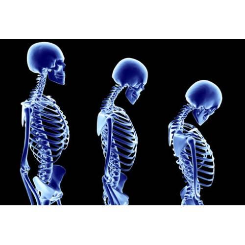 Osteoporoza – cauze, simptome, tratament și îngrijirea pacienților