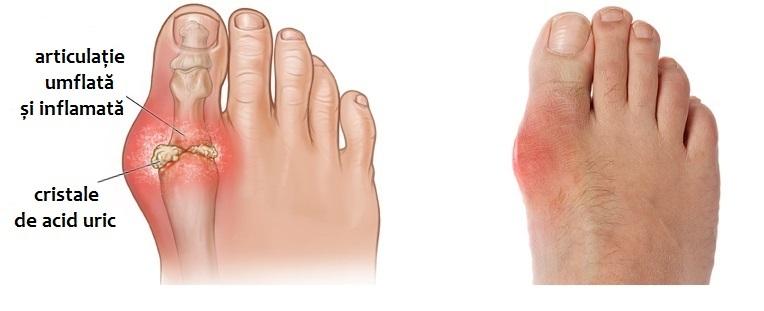 inflamația articulară pe degetul piciorului unde este cel mai bun tratament pentru artroză